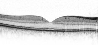 OCT Normal-300x139 in SPECTRALIS OCT